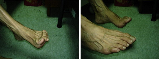 Stiff-person Syndrome with Cerebellar Manifestations and Foot Deformities